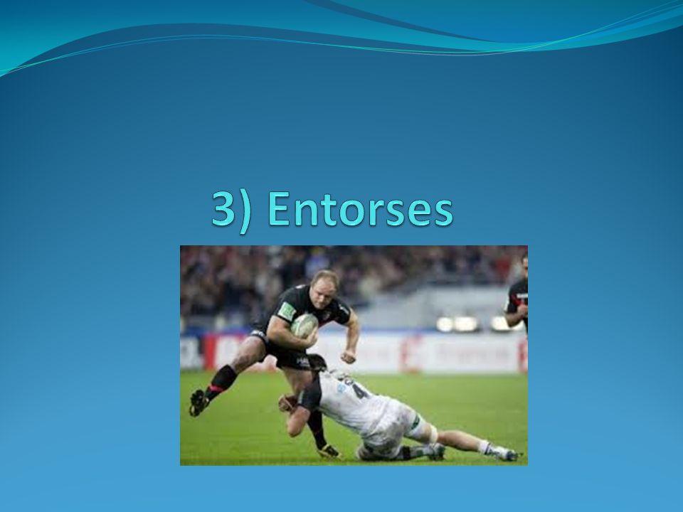 3) Entorses