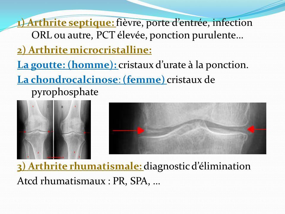 1) Arthrite septique: fièvre, porte d'entrée, infection ORL ou autre, PCT élevée, ponction purulente… 2) Arthrite microcristalline: La goutte: (homme): cristaux d'urate à la ponction.