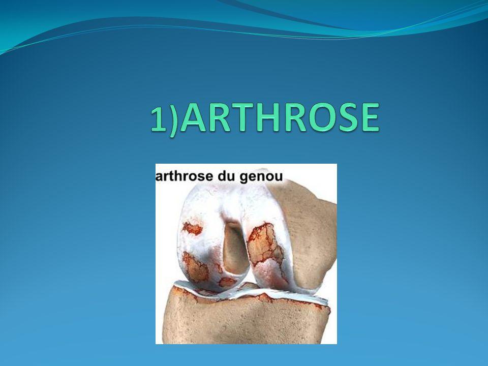 1)ARTHROSE