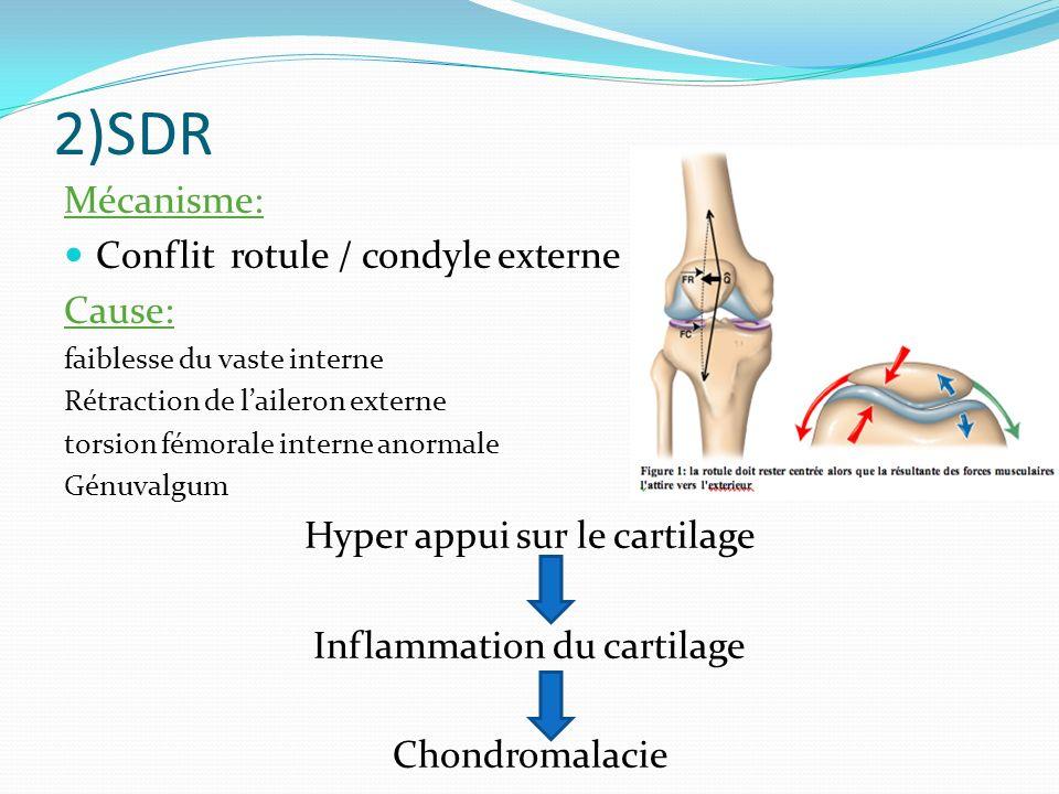 2)SDR Mécanisme: Conflit rotule / condyle externe Cause:
