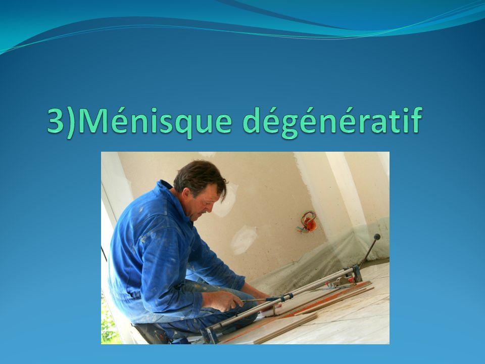 3)Ménisque dégénératif