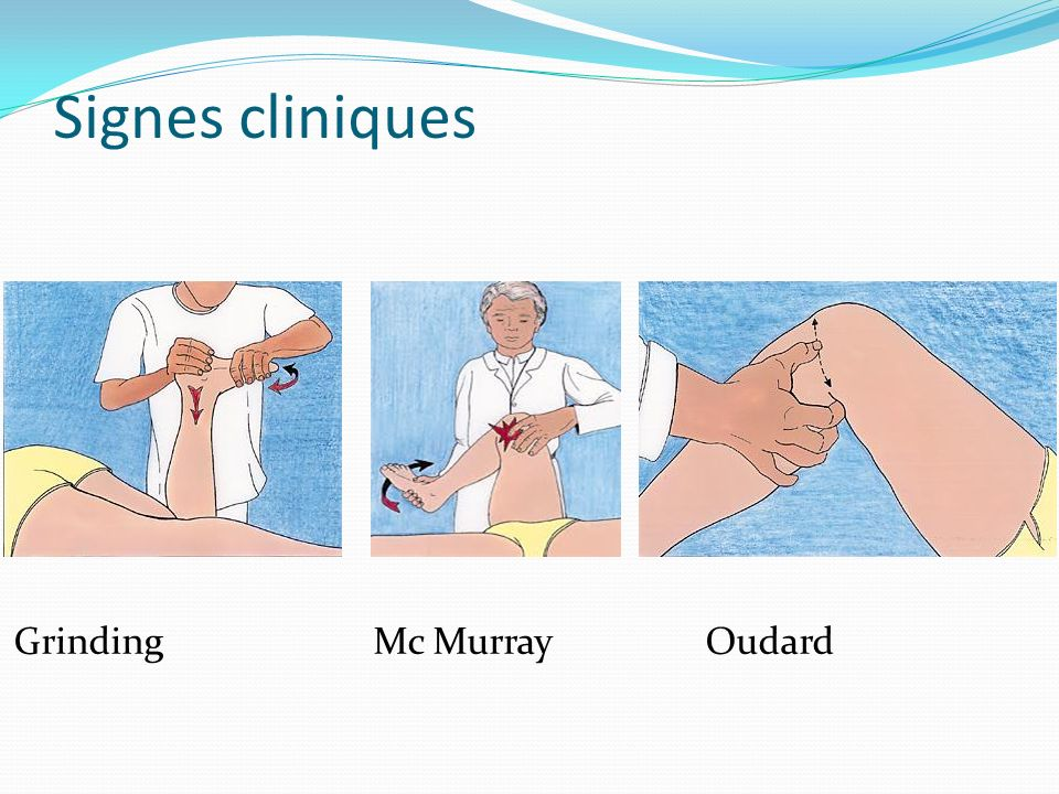 Signes cliniques Grinding Mc Murray Oudard