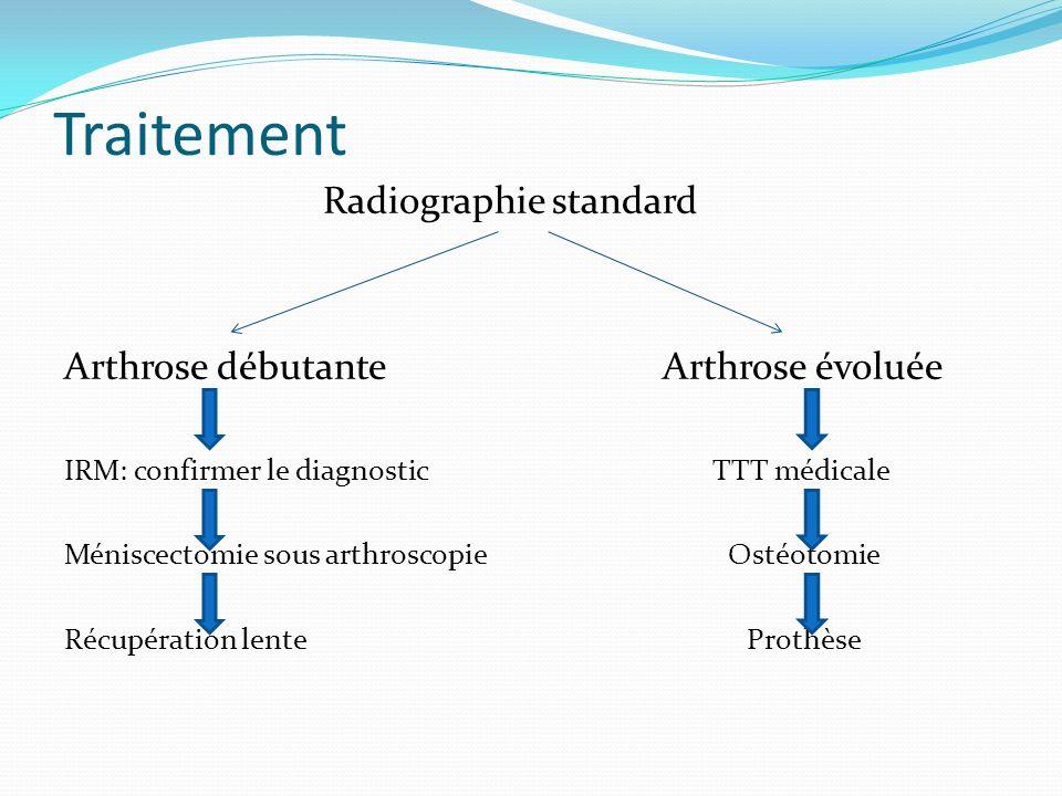 Traitement Radiographie standard Arthrose débutante Arthrose évoluée