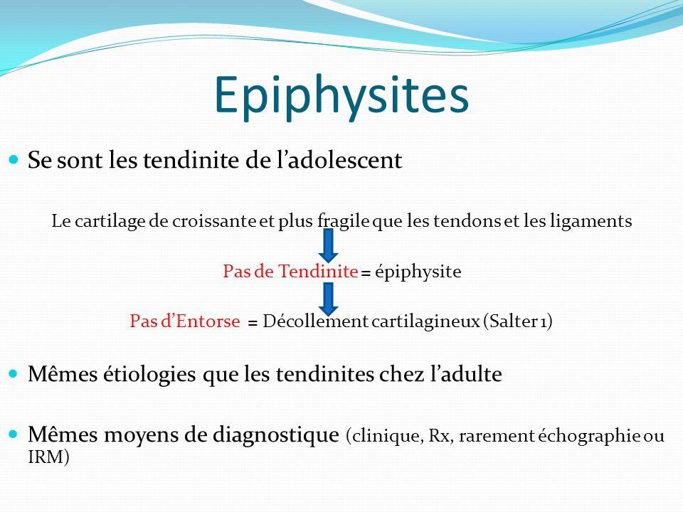Epiphysites Se sont les tendinite de l'adolescent
