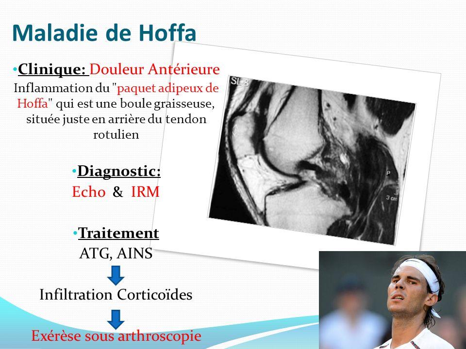 Maladie de Hoffa Clinique: Douleur Antérieure Diagnostic: Echo & IRM