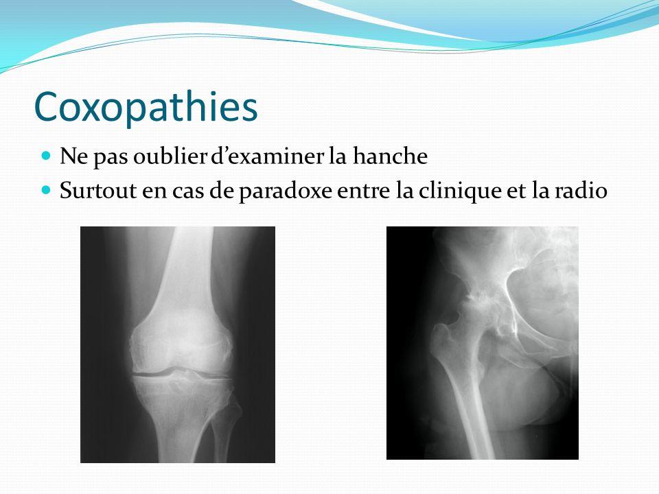 Coxopathies Ne pas oublier d'examiner la hanche