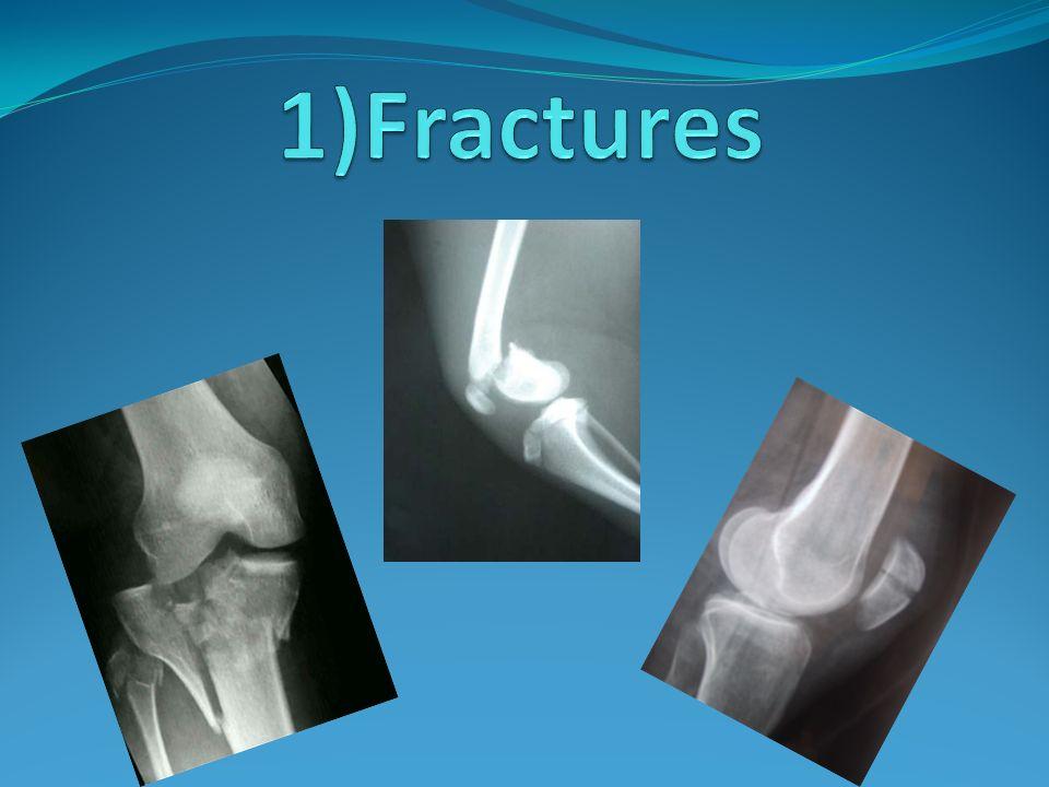 1)Fractures