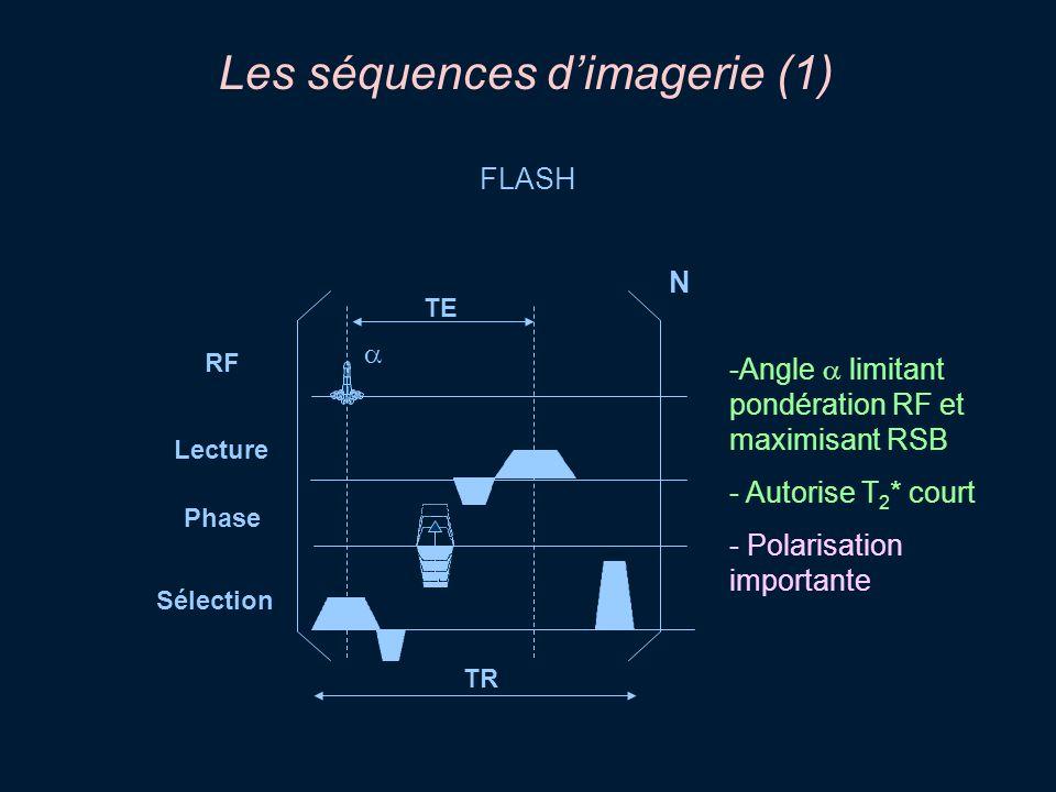 Les séquences d'imagerie (1)