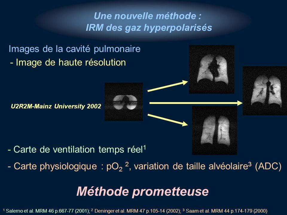 Une nouvelle méthode : IRM des gaz hyperpolarisés