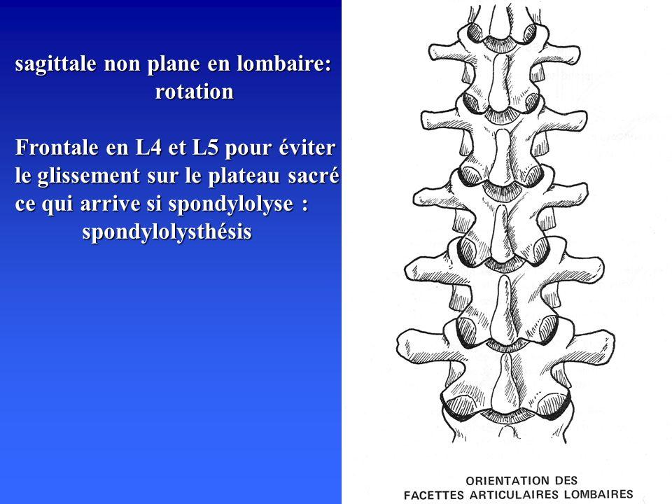 sagittale non plane en lombaire: rotation