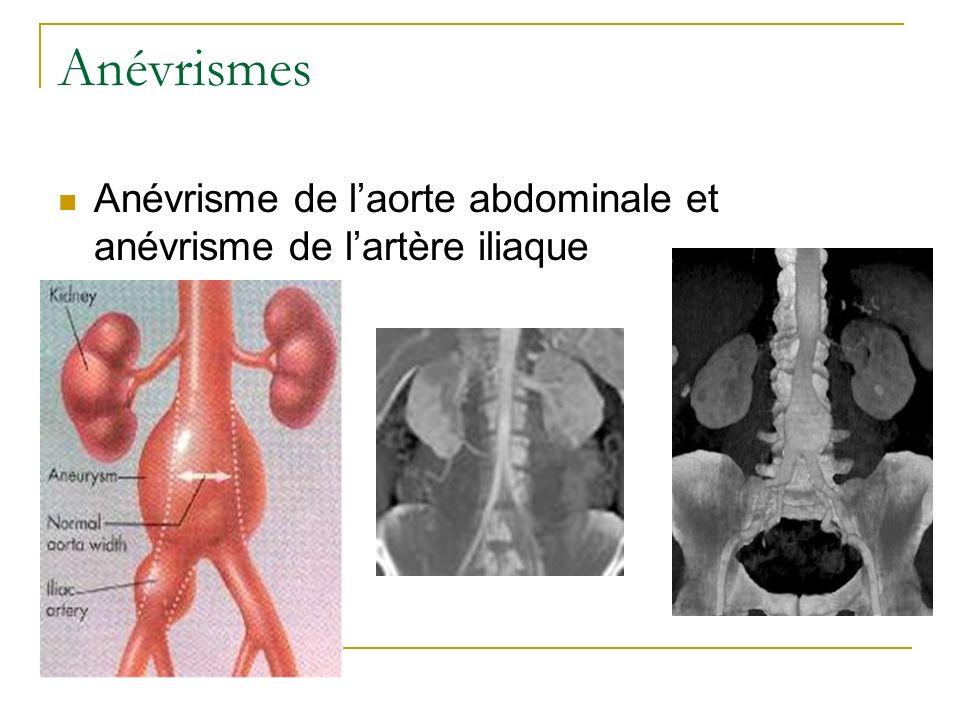 Anévrismes Anévrisme de l'aorte abdominale et anévrisme de l'artère iliaque