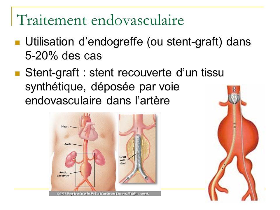 Traitement endovasculaire