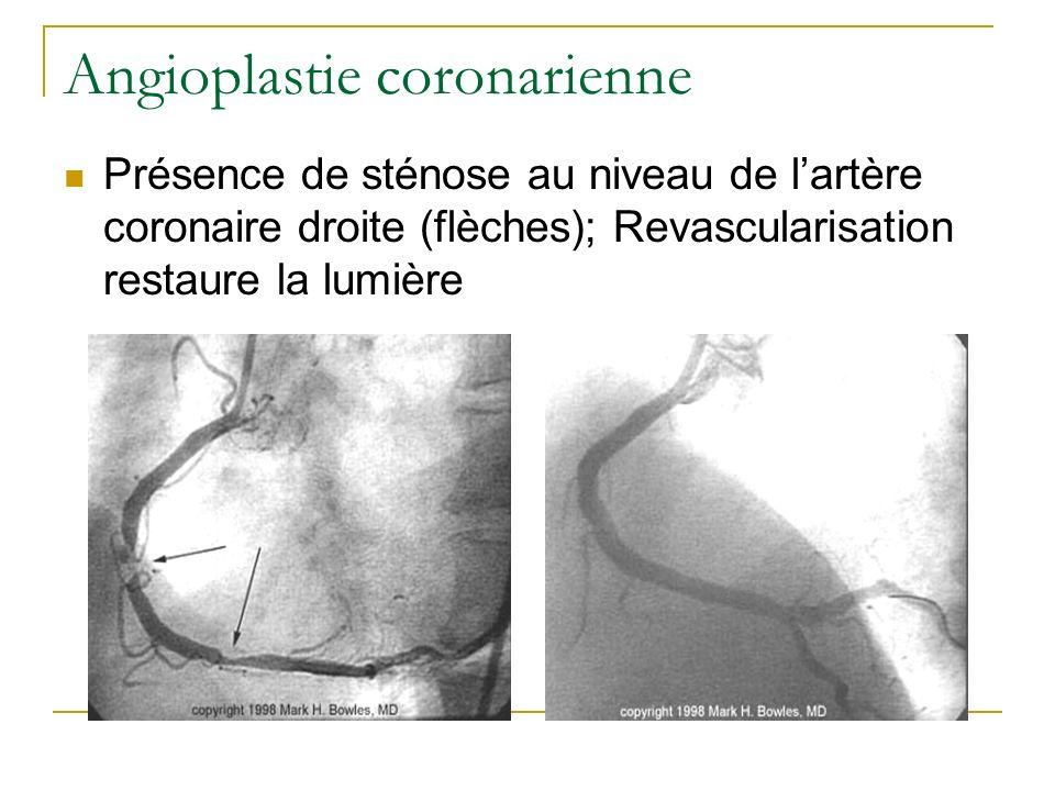 Angioplastie coronarienne