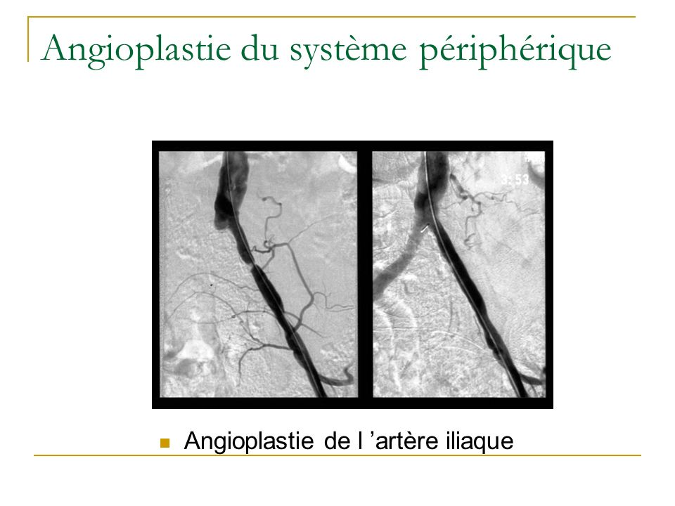 Angioplastie du système périphérique