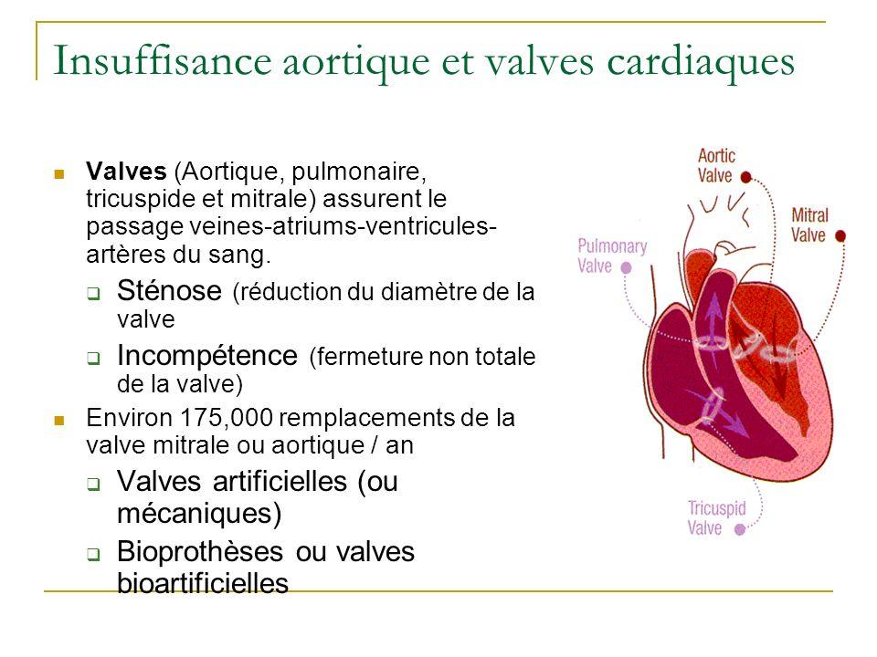 Insuffisance aortique et valves cardiaques