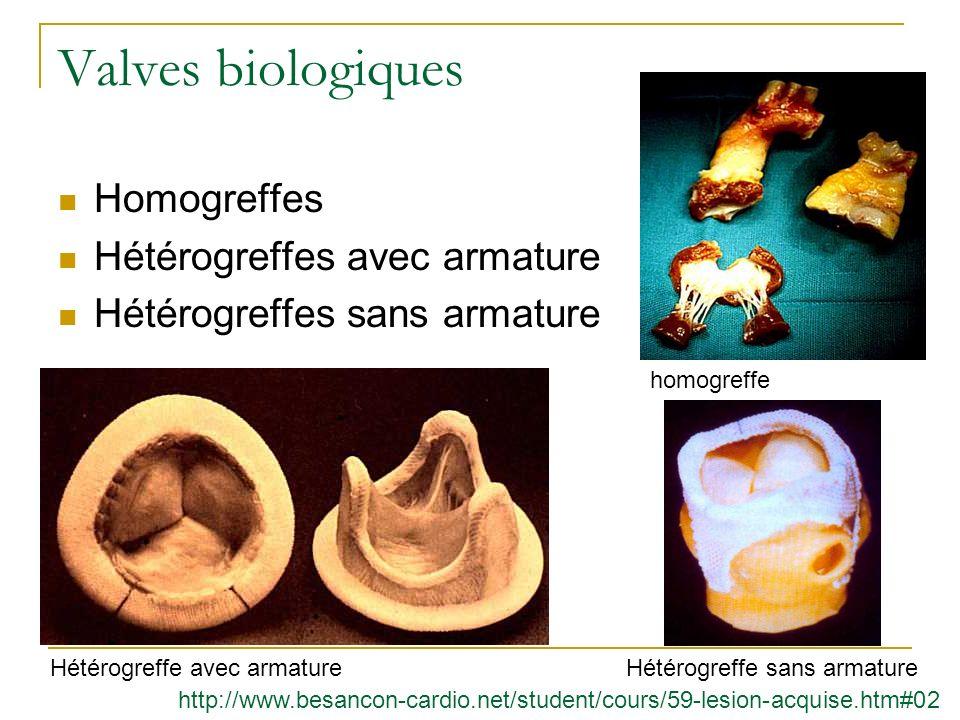Valves biologiques Homogreffes Hétérogreffes avec armature