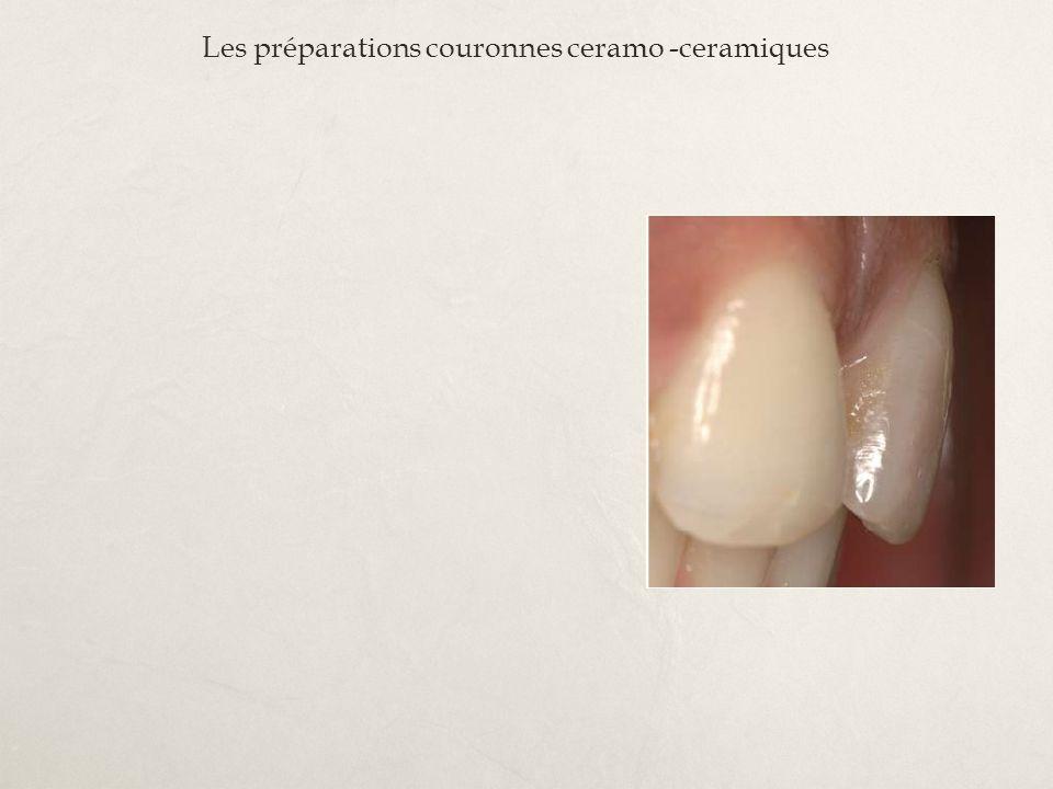 Les préparations couronnes ceramo -ceramiques