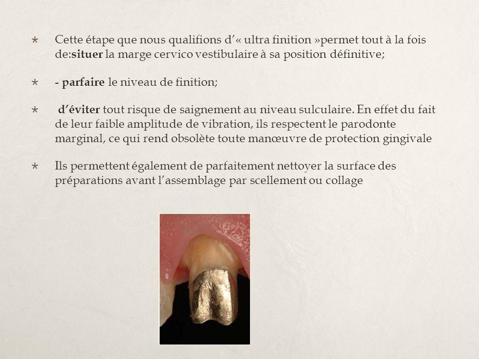 Cette étape que nous qualifions d'« ultra finition »permet tout à la fois de:situer la marge cervico vestibulaire à sa position définitive;