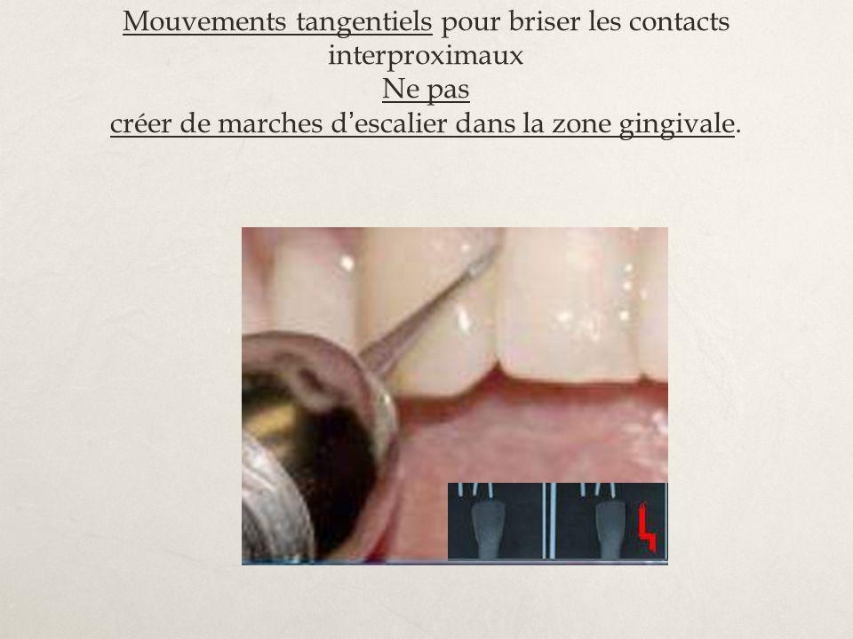 Mouvements tangentiels pour briser les contacts interproximaux Ne pas créer de marches d'escalier dans la zone gingivale.