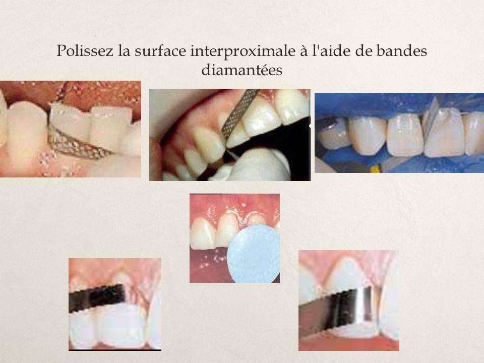 Polissez la surface interproximale à l aide de bandes diamantées