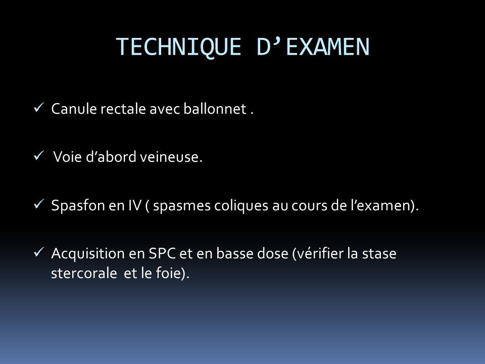 TECHNIQUE D'EXAMEN Canule rectale avec ballonnet .