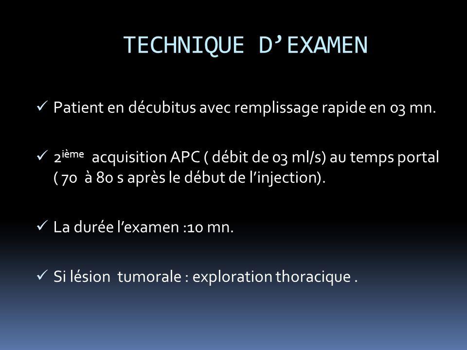 TECHNIQUE D'EXAMEN Patient en décubitus avec remplissage rapide en 03 mn.