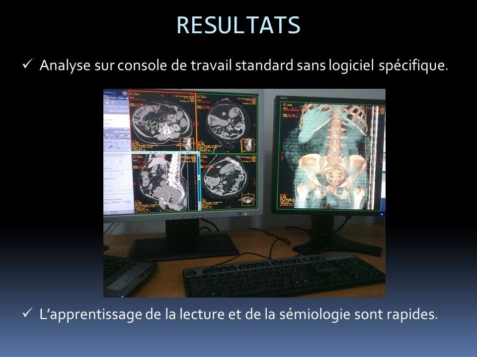 RESULTATS Analyse sur console de travail standard sans logiciel spécifique.