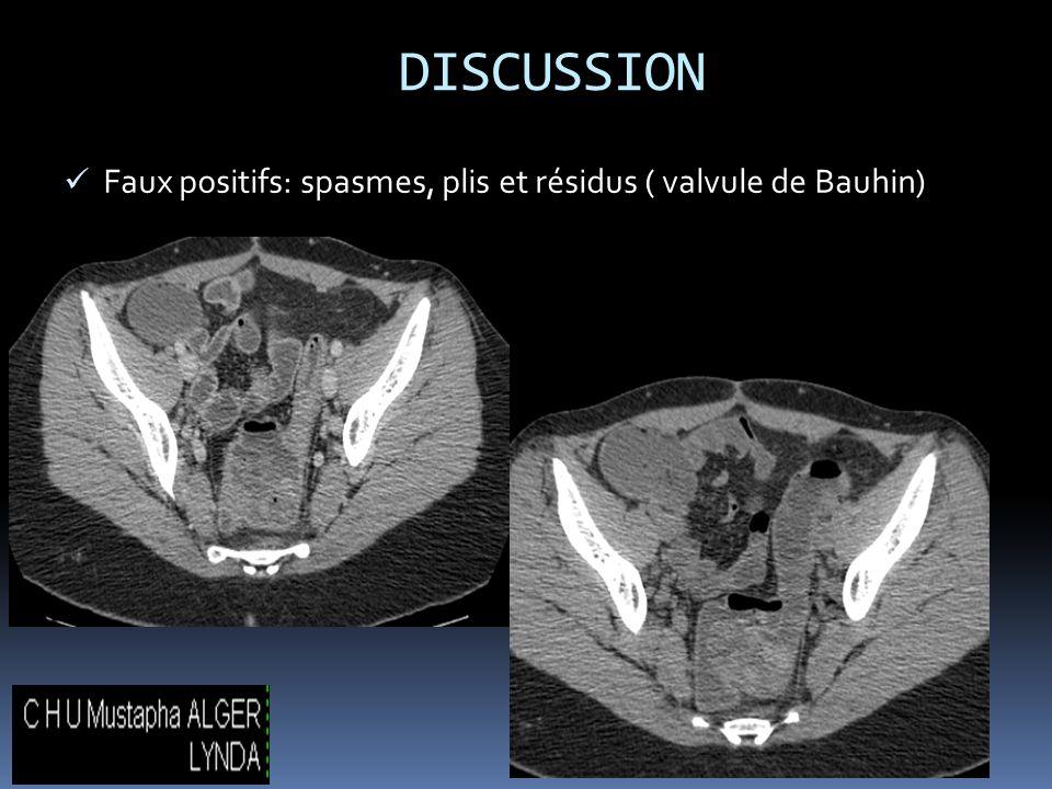 DISCUSSION Faux positifs: spasmes, plis et résidus ( valvule de Bauhin)