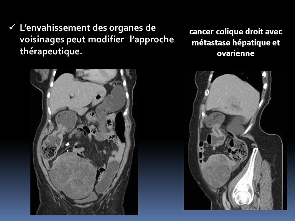cancer colique droit avec métastase hépatique et ovarienne