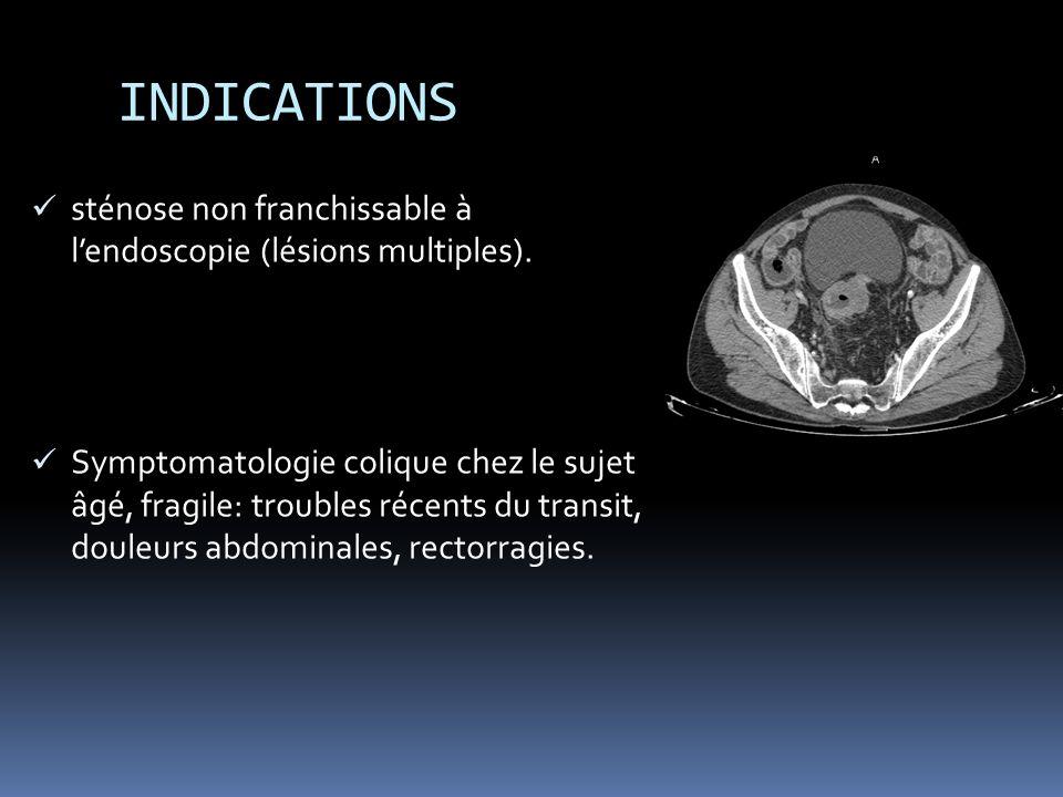 INDICATIONS sténose non franchissable à l'endoscopie (lésions multiples).