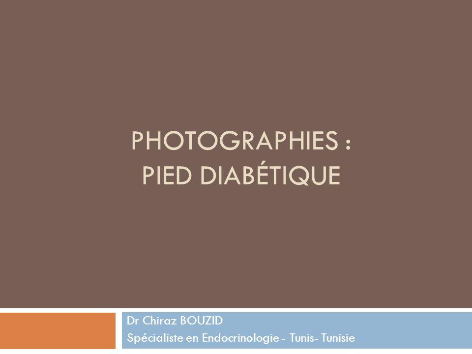 Photographies : pied diabétique