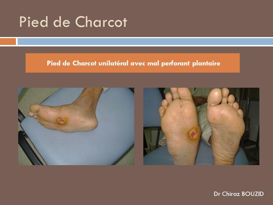 Pied de Charcot unilatéral avec mal perforant plantaire