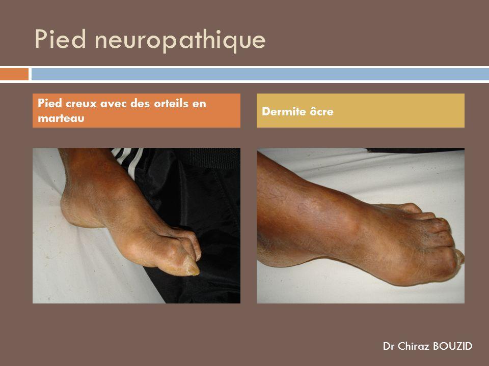 Pied neuropathique Pied creux avec des orteils en marteau Dermite ôcre