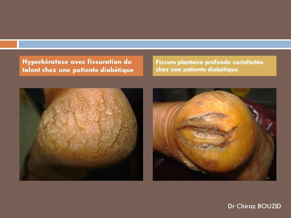 Hyperkératose avec fissuration du talent chez une patiente diabétique
