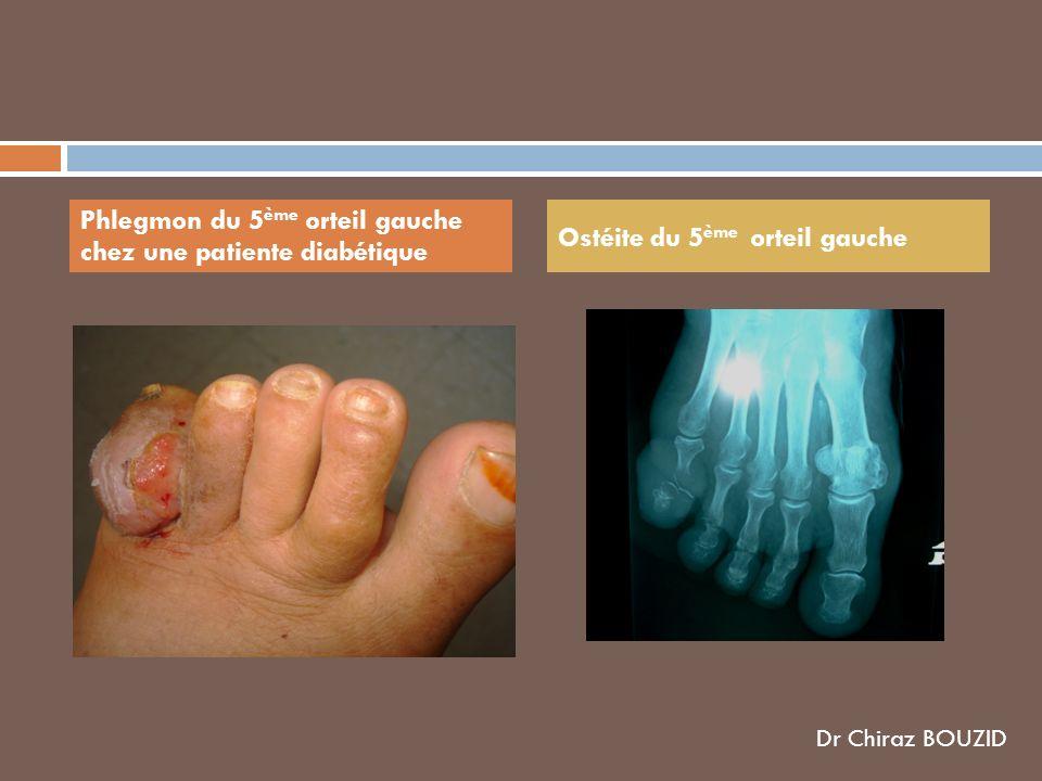 Phlegmon du 5ème orteil gauche chez une patiente diabétique