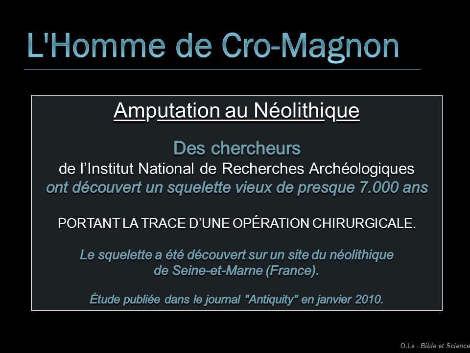 L Homme de Cro-Magnon Amputation au Néolithique Des chercheurs