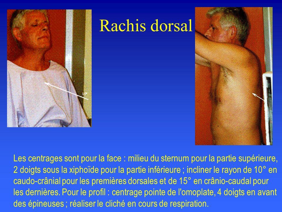 Rachis dorsal