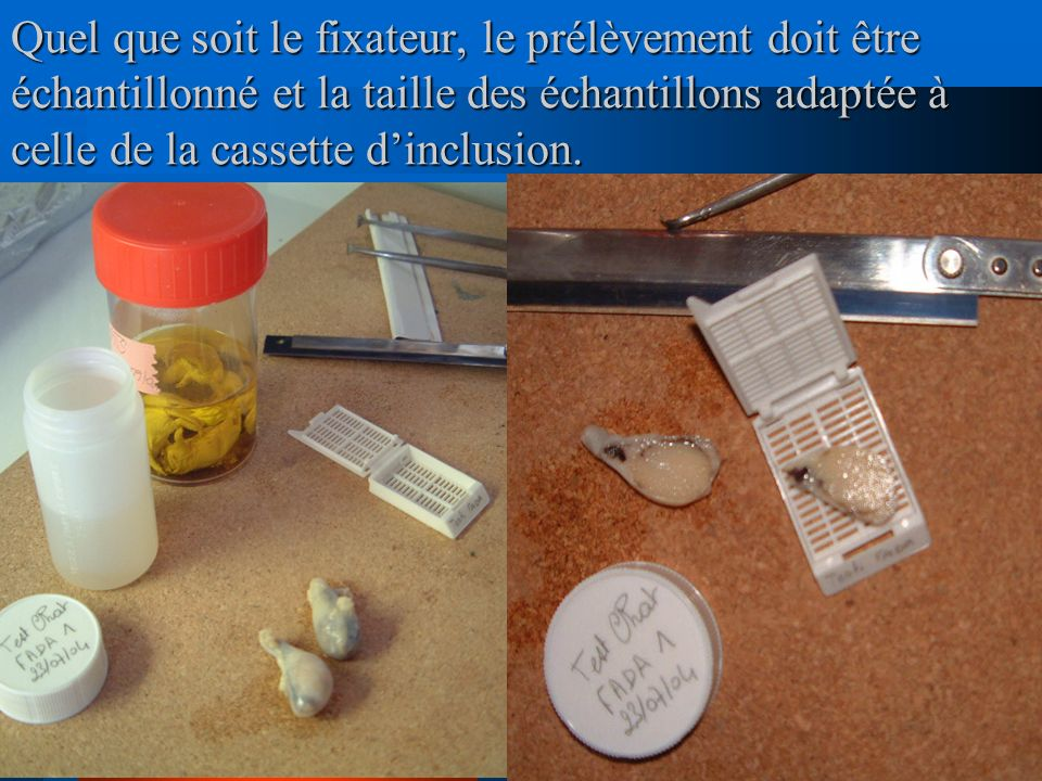 Quel que soit le fixateur, le prélèvement doit être échantillonné et la taille des échantillons adaptée à celle de la cassette d'inclusion.