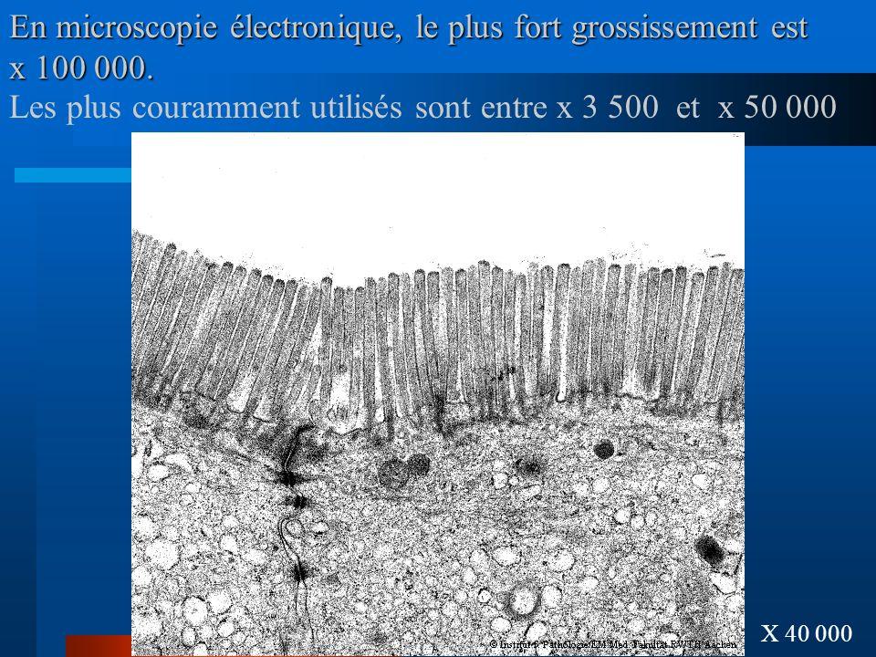 En microscopie électronique, le plus fort grossissement est x 100 000.