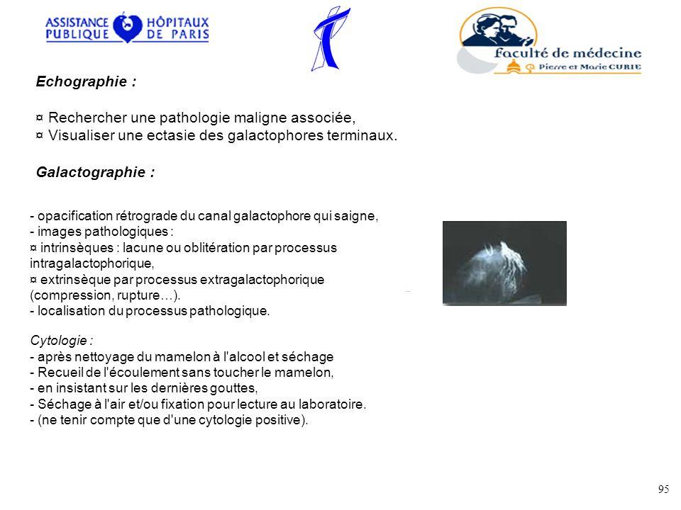Echographie : ¤ Rechercher une pathologie maligne associée, ¤ Visualiser une ectasie des galactophores terminaux.