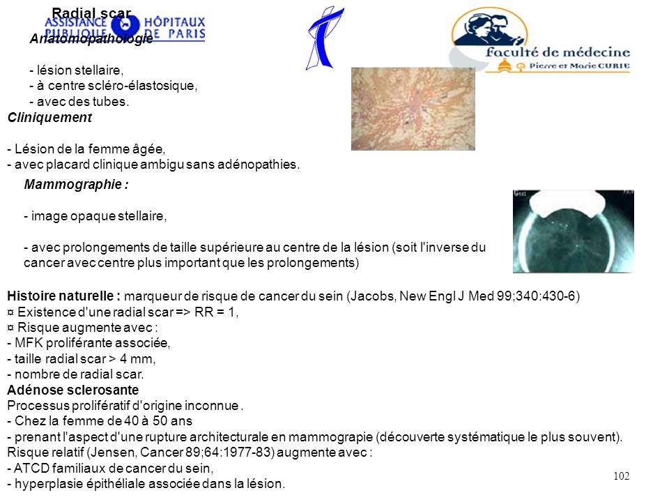 Radial scar Anatomopathologie - lésion stellaire, - à centre scléro-élastosique, - avec des tubes.