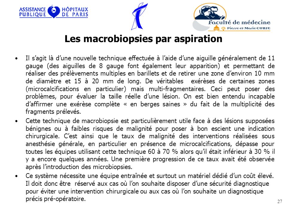 Les macrobiopsies par aspiration