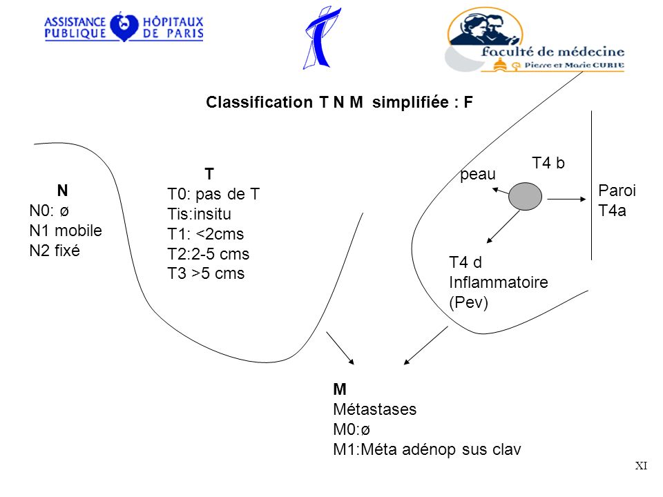 Classification T N M simplifiée : F