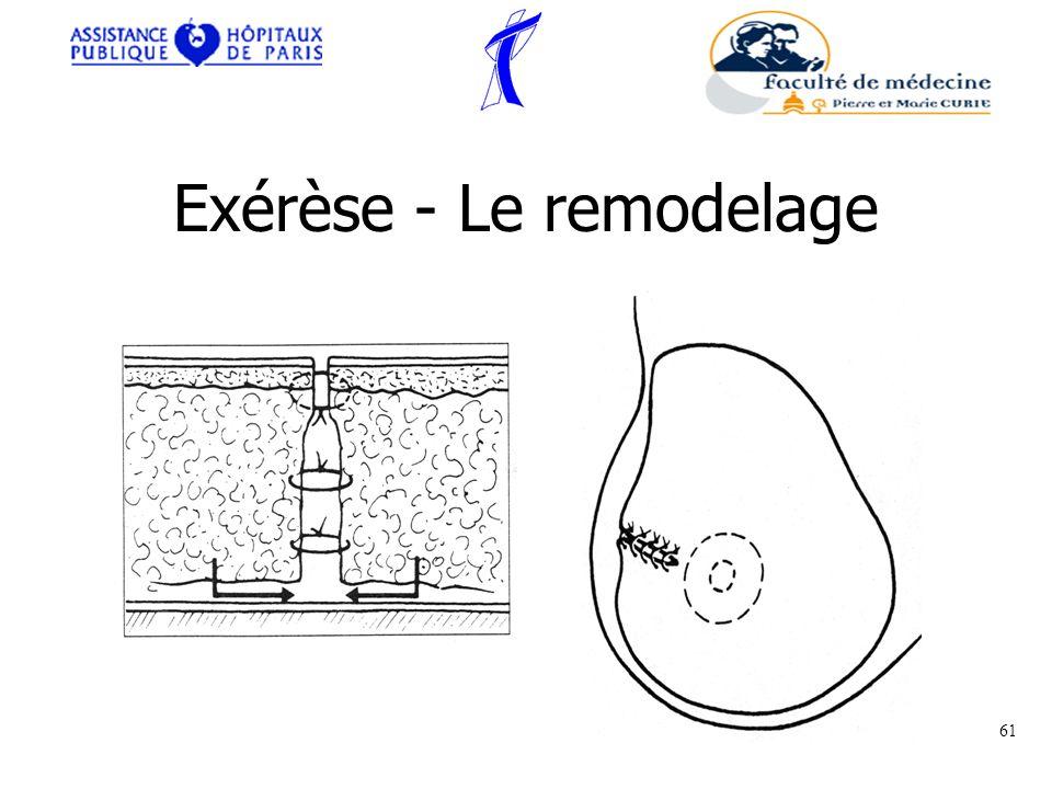 Exérèse - Le remodelage