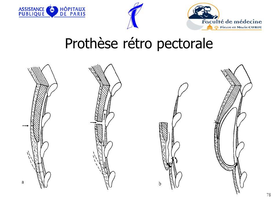 Prothèse rétro pectorale