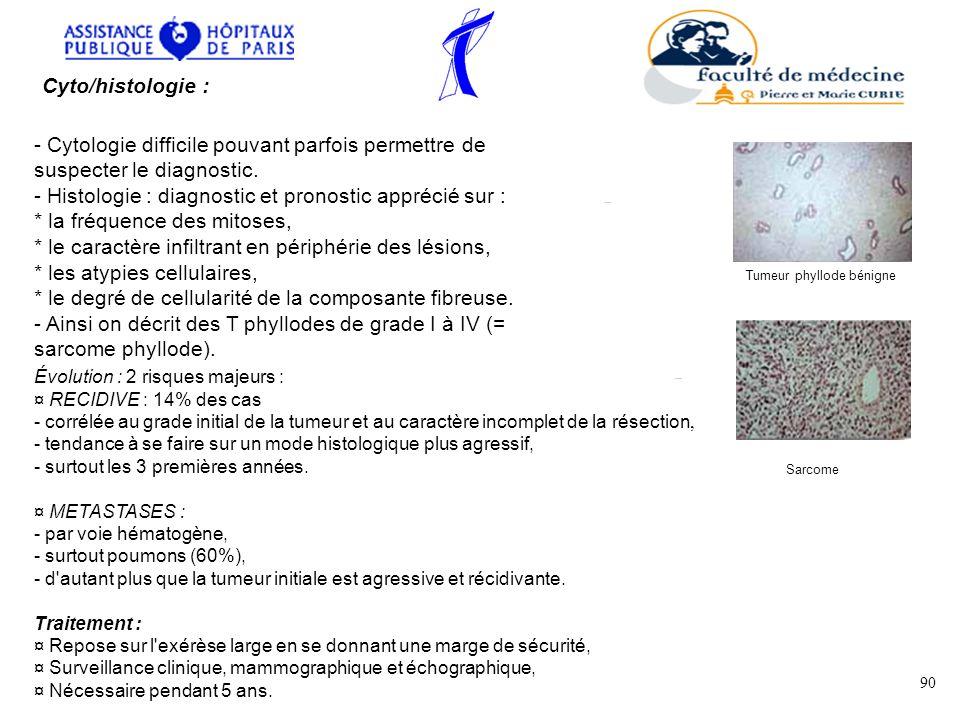 - Histologie : diagnostic et pronostic apprécié sur :