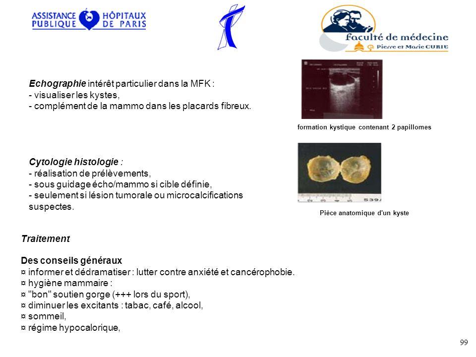 formation kystique contenant 2 papillomes Pièce anatomique d un kyste