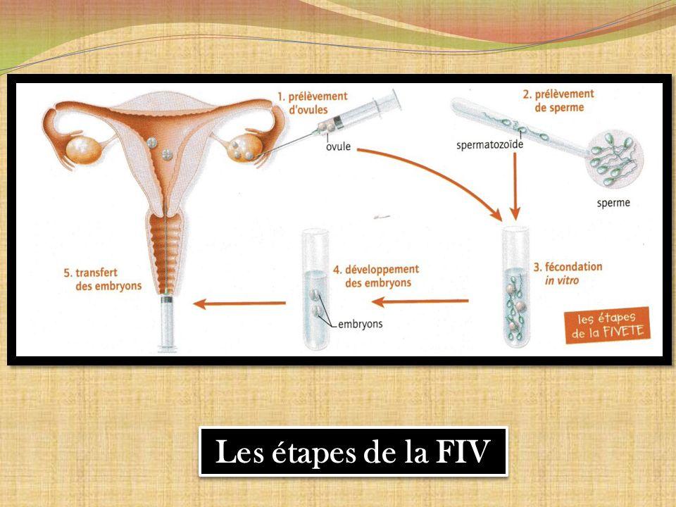 Les étapes de la FIV