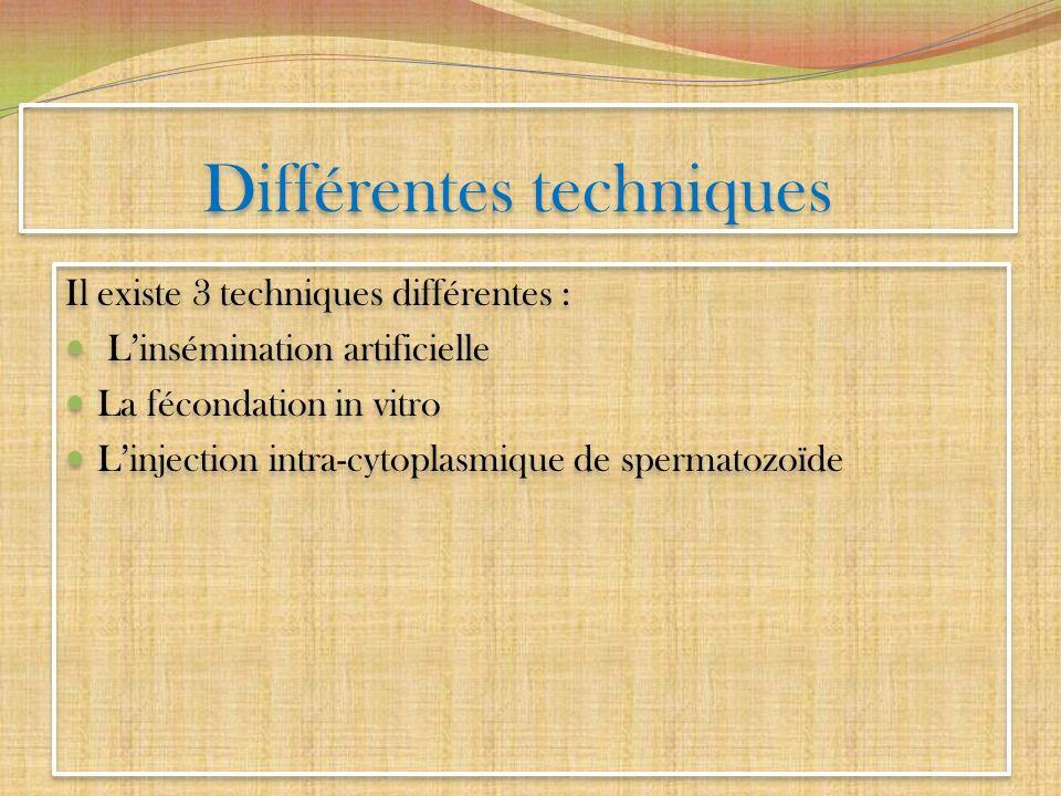 Différentes techniques