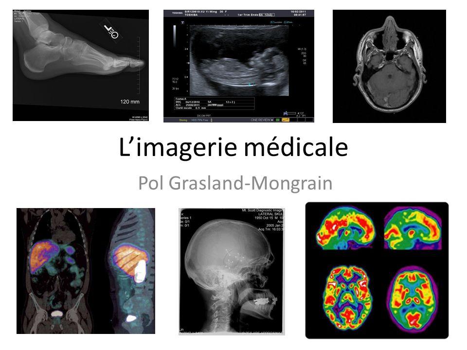 Pol Grasland-Mongrain
